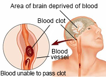 Stroke and blood clot
