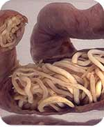 parasite worms in human intestines